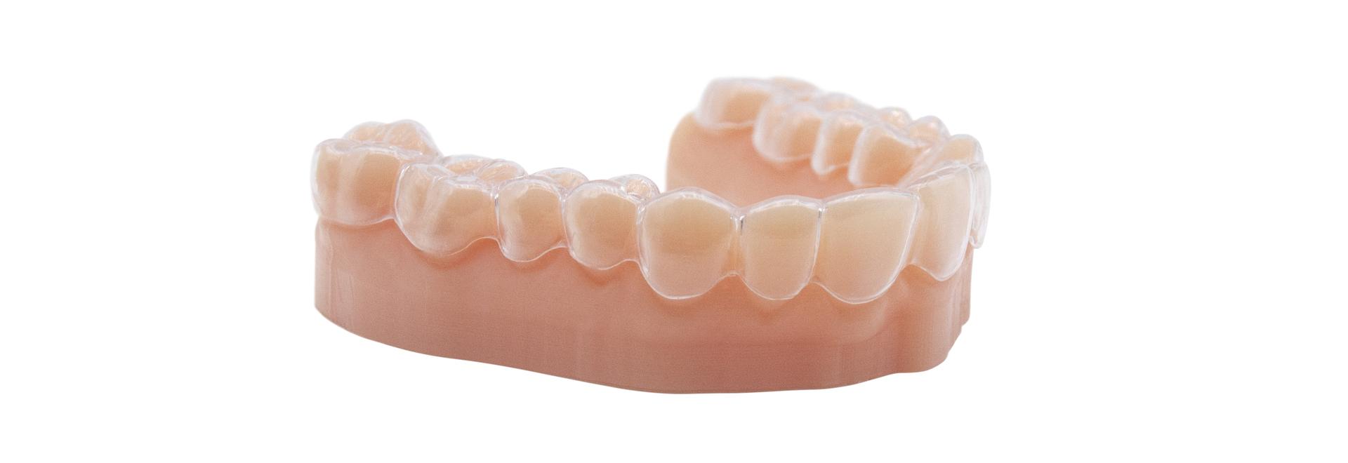 Modello dentale stampato con LD10